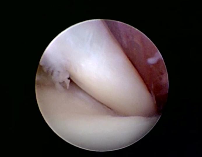 Immagine artroscopia di un muscolo bicipite normale