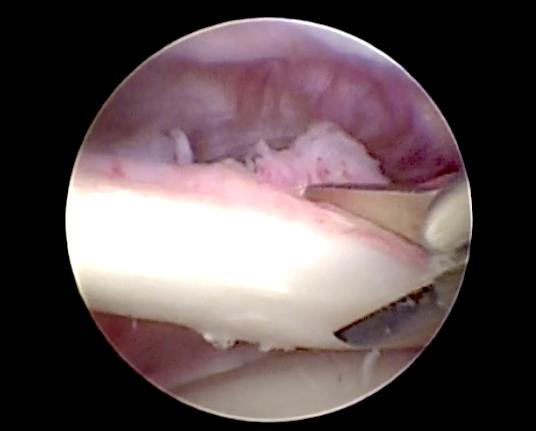 Immagine artroscopia della tenotomia di un muscolo bicipite patologico.