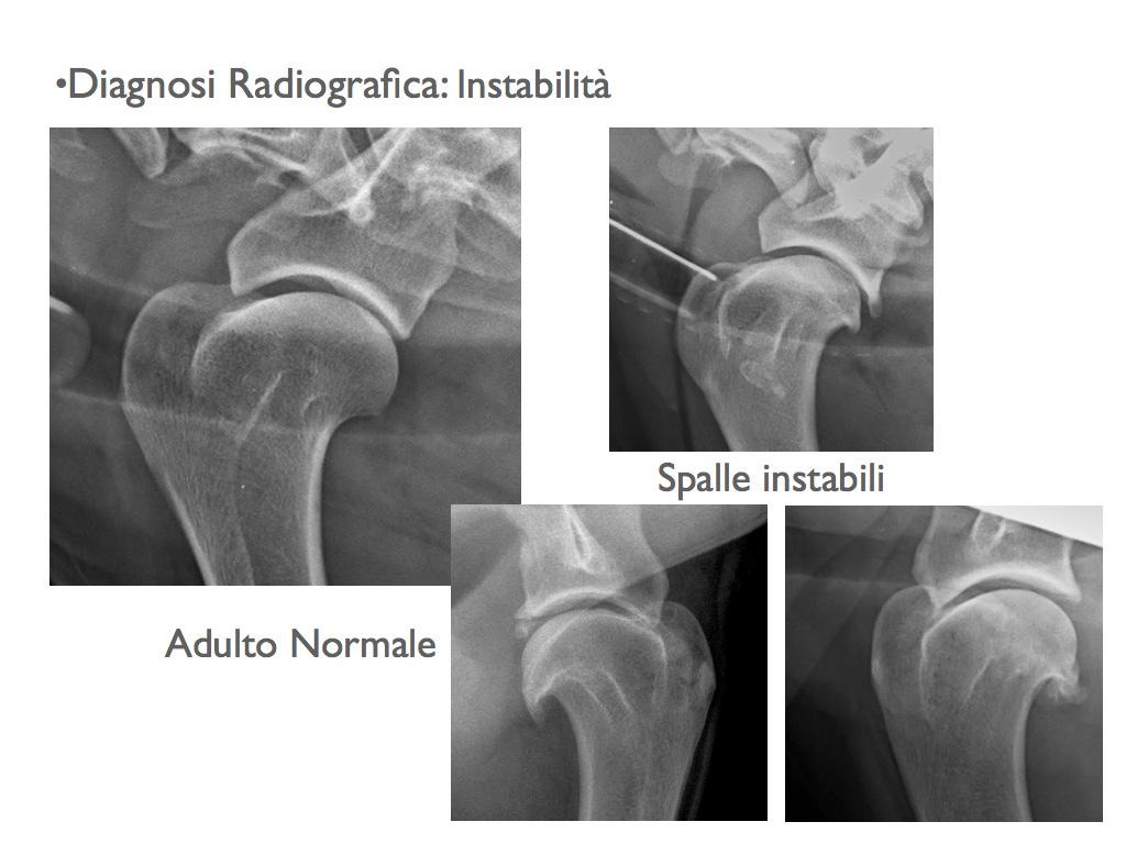 Diagnosi radiografica: instabilità della spalla.
