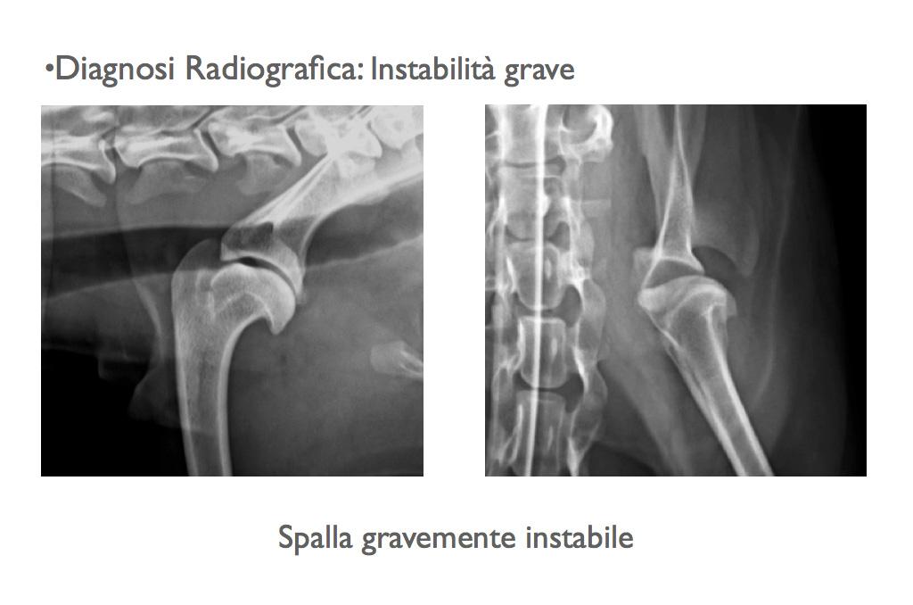 Diagnosi radiografica: instabilità grave della spalla.